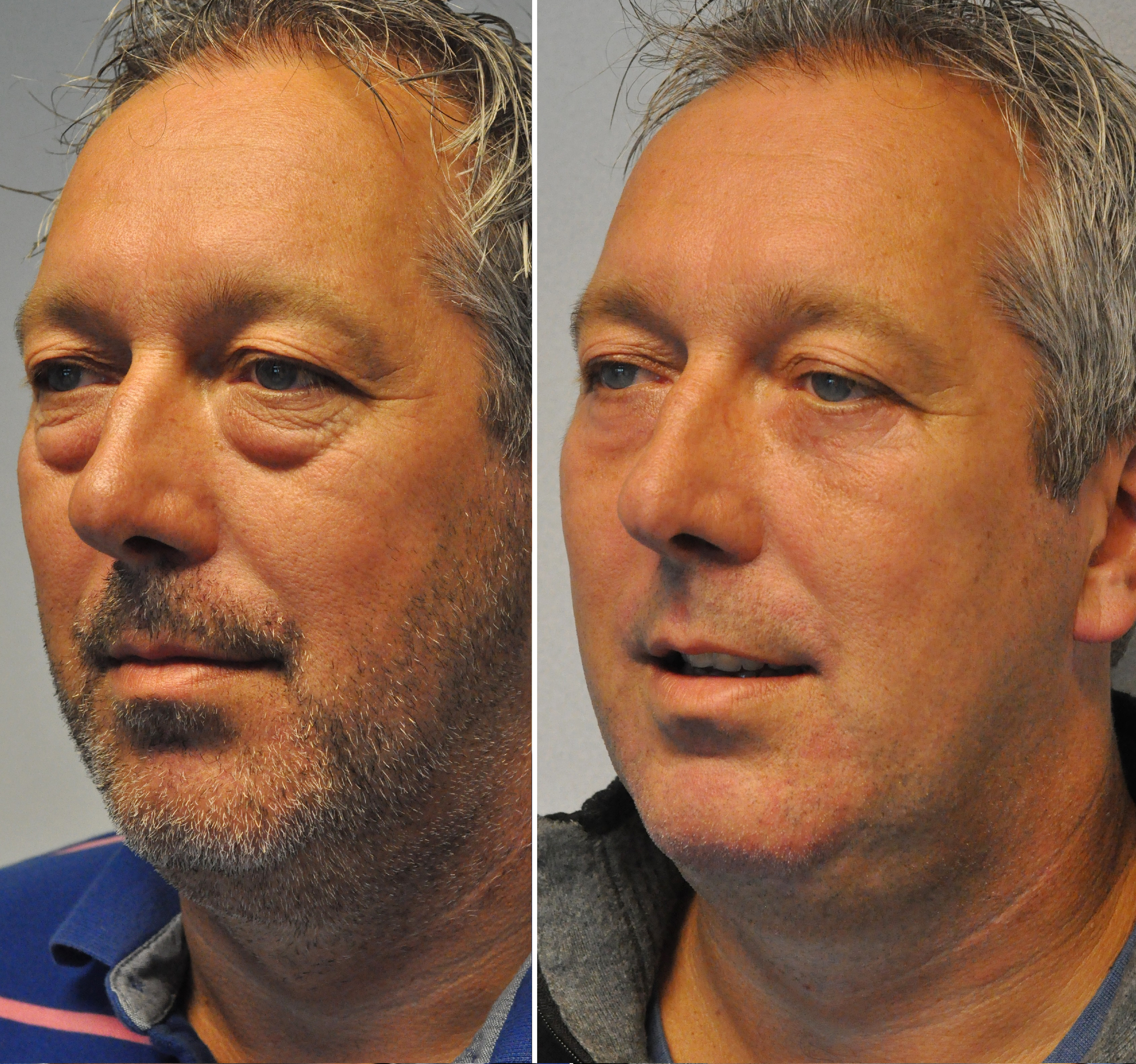 voorna ool wouter - Results Undereyelid correction