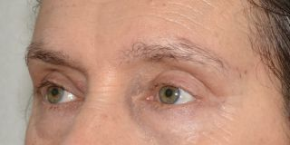 wbliftlipofilling1 - Results Brow-lift